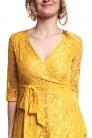 Obrázok 3 Žlté čipkované midi šaty